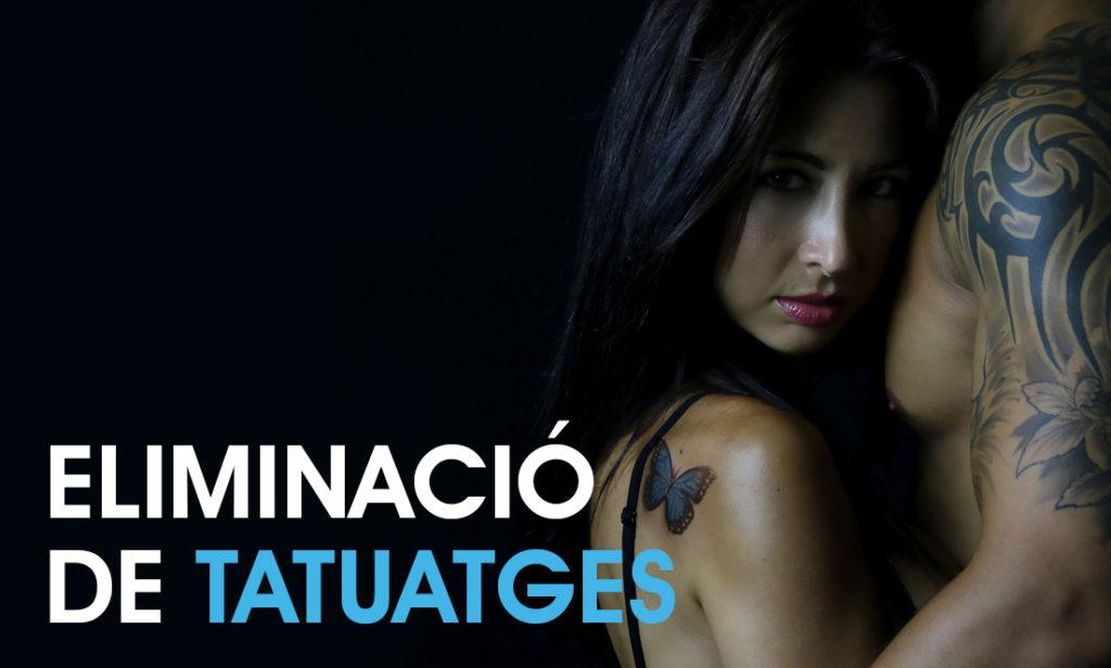 eliminació tatuatges