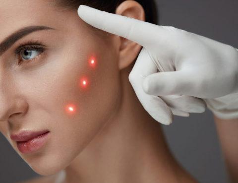 Bioremodelació facial