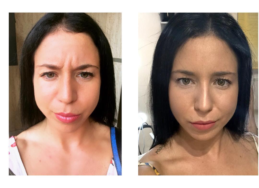 tractament amb botox per les arrugues