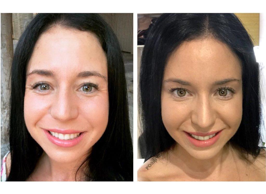 tractament amb botox