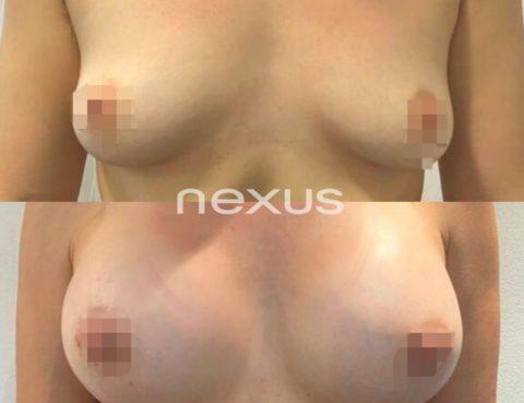 Augment de pits Clínica Nexus