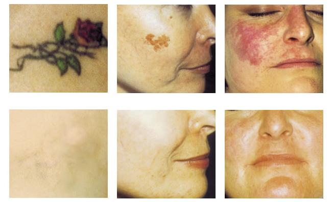 Lesions_pigmentaries