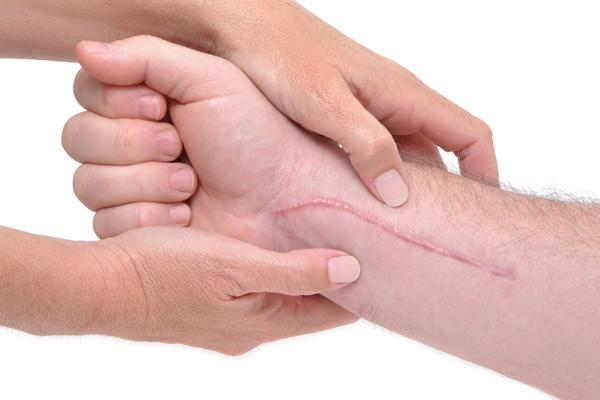 Cicatriu eritematosa hipertròfica