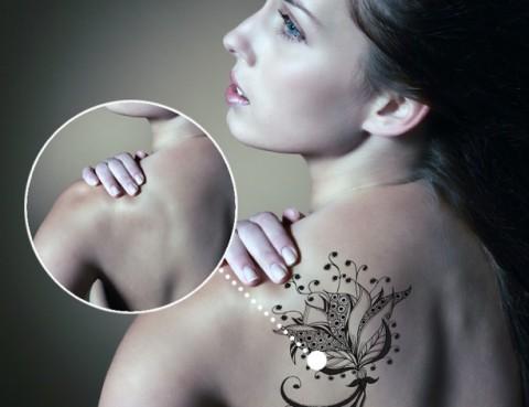 eliminació tatuatges picosure